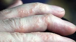 Picture for category Eczema
